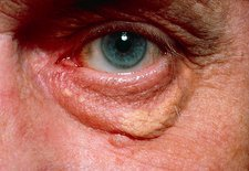 Yellowish swelling of lower eyelid