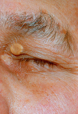Xanthelasma, a fat deposit on upper eyelid