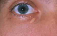 Xanthelasma deposit on lower eyelid