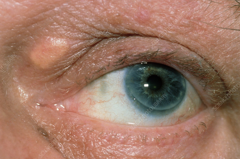 Xanthoma or deposit of fatty material on the eye
