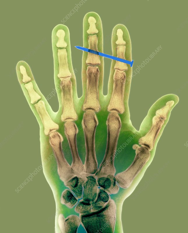 Nail in fingers, X-ray