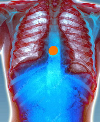 Swallowed coin, X-ray
