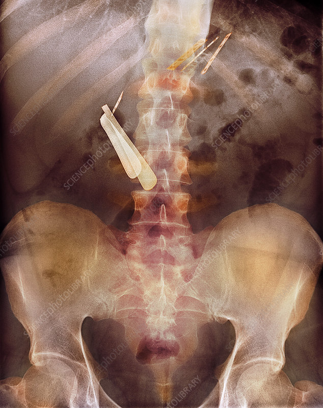 Swallowed razor and razor blades, X-ray