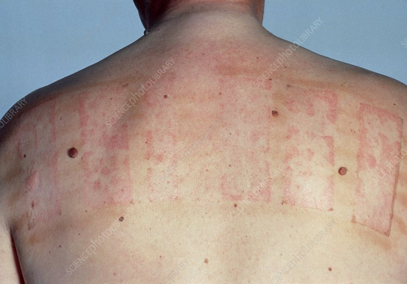The results of a patch test on a patient's back