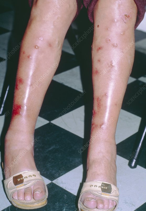 Bullous reaction to insect bites on woman's legs