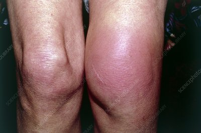 Allergic reaction to insect bite on knee