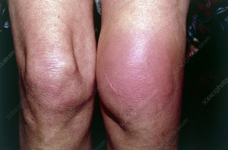 Allergic Reaction To Insect Bite On Knee Stock Image M3200055