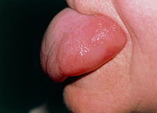 Angioedema on tongue