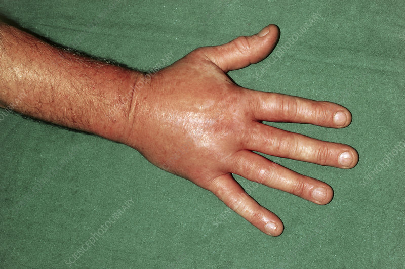 Oedema of hand following insect bite
