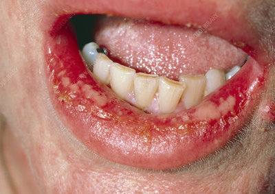 Oral ulcers as a result of a drug reaction