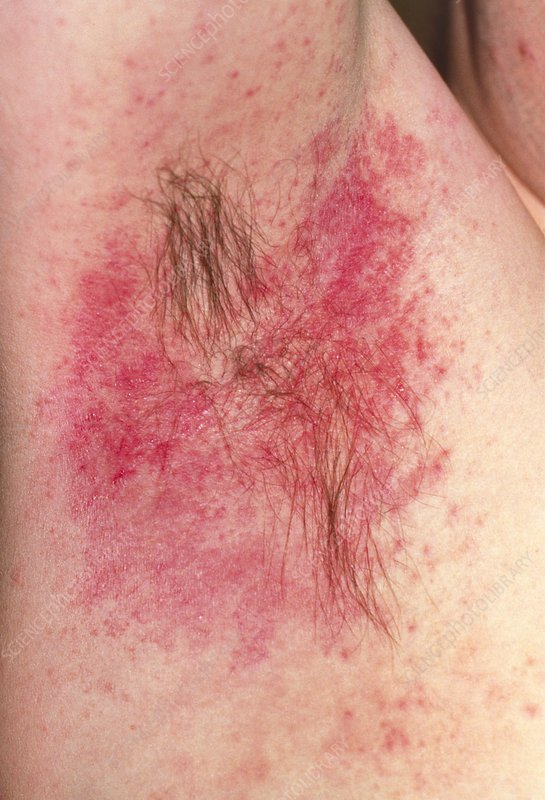 Hypersensitivity reaction to deodorant in armpit