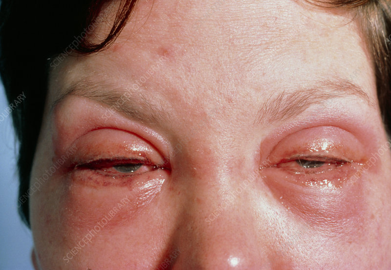 Woman's eyes inflamed due to make-up allergy