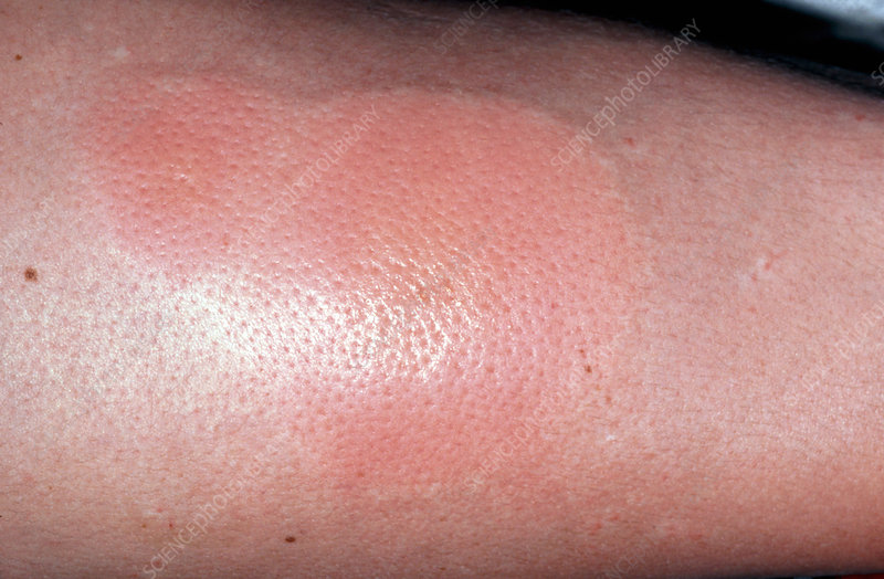 spider bite rash pictures. spider bite rashes. stories