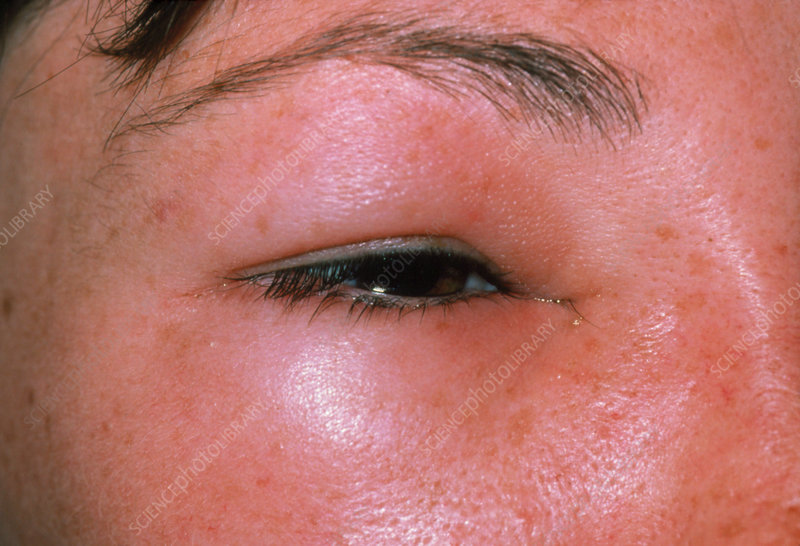 Oedema around the eye due to a bee sting