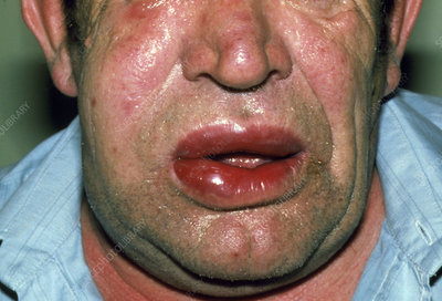 Angioedema of lips due to allergic reaction
