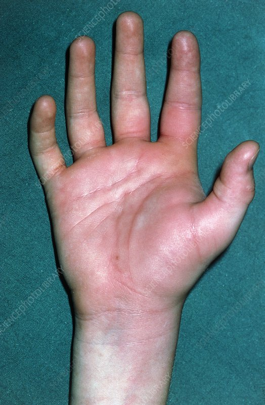 Treatment for swollen hand from bee sting out