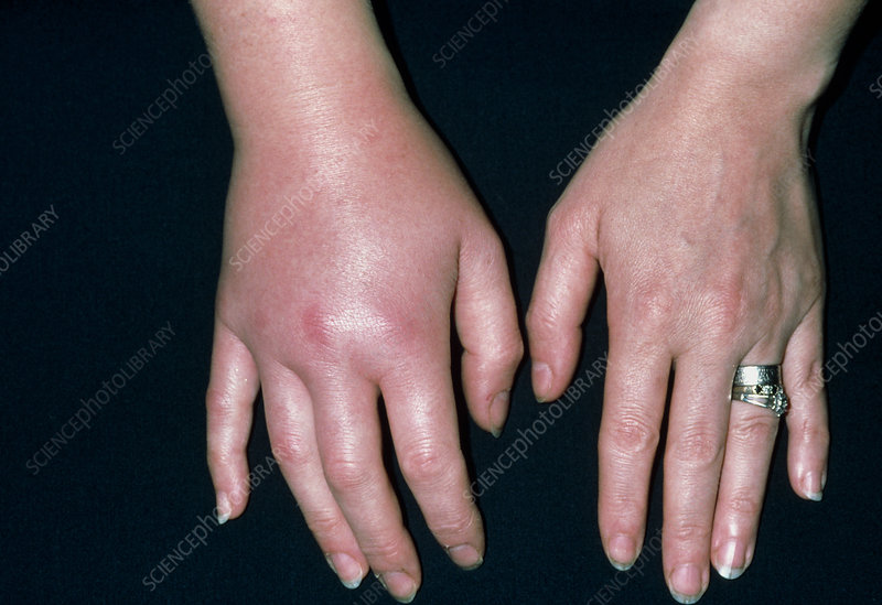 Woman's swollen hand due to infected insect sting