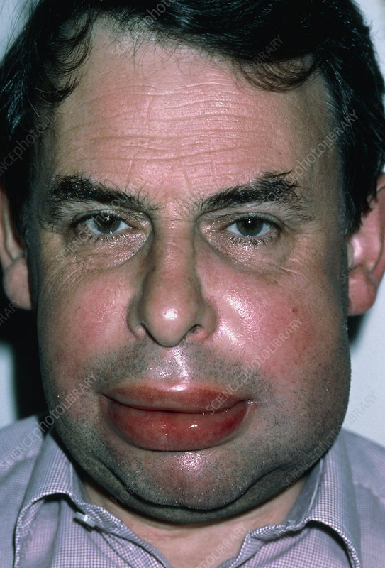 Angioedema of face in 50-year-old man