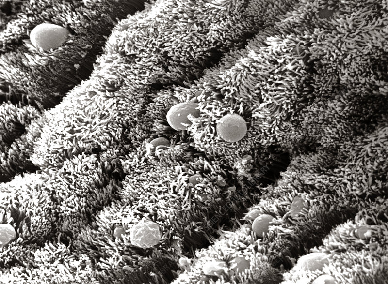 Allergens on ciliated epithelium of the nose