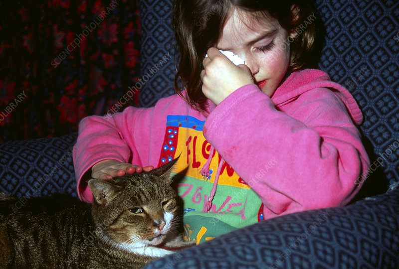 A 7 year old girl has allergic reaction to pet cat