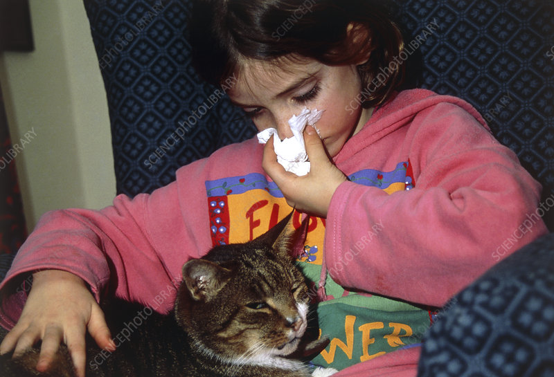 Young girl has allergic reaction to pet cat