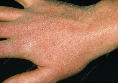 Dry skin reaction on hand due to anti-acne drug