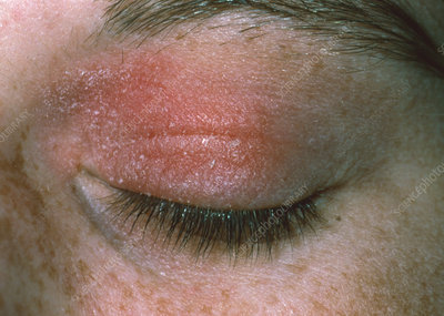 Allergic reaction to cosmetic eye make-up