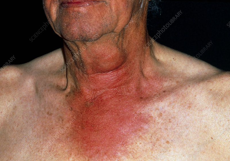 Man's swollen neck due to a wasp sting