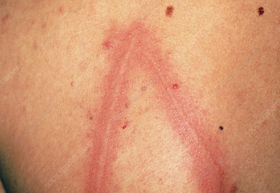 Dermatographism: urticaria on skin of a young man