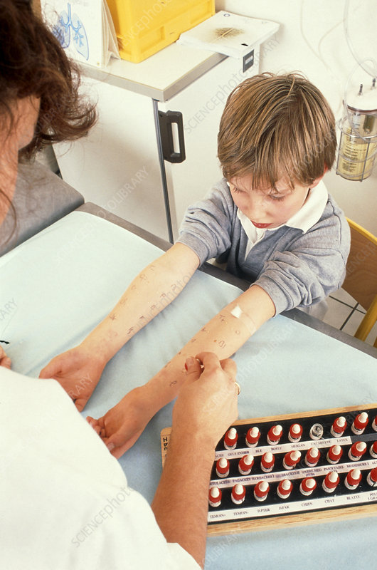 Skin prick test for allergens on a child's arms