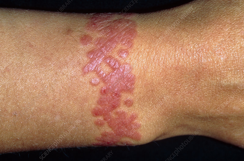 Rash around the wrist of a woman at a tattoo site