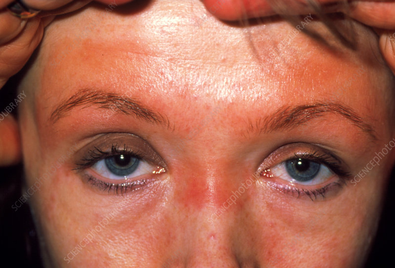 Allergic Reaction To Cosmetic Eye Make Up Stock Image M3200246