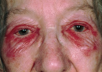 Allergic conjunctivitis due to Alphagan eye drops