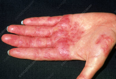 Hairdresser hand with contact dermatitis