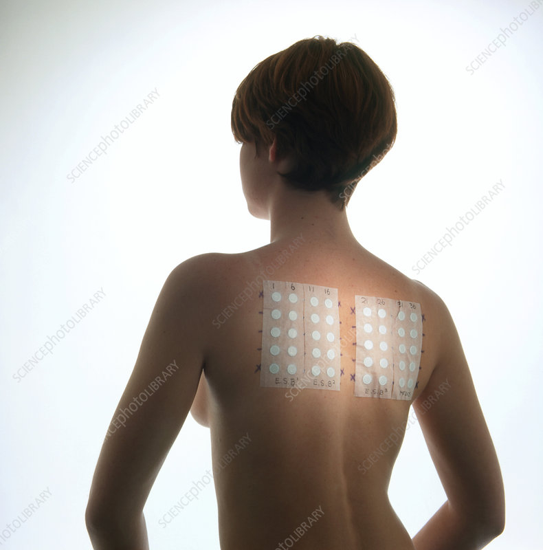 Young woman with allergy test patches on her back