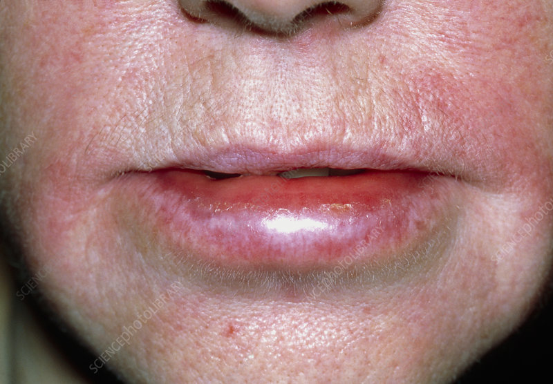 Angioedema of the lips due to an allergic reaction