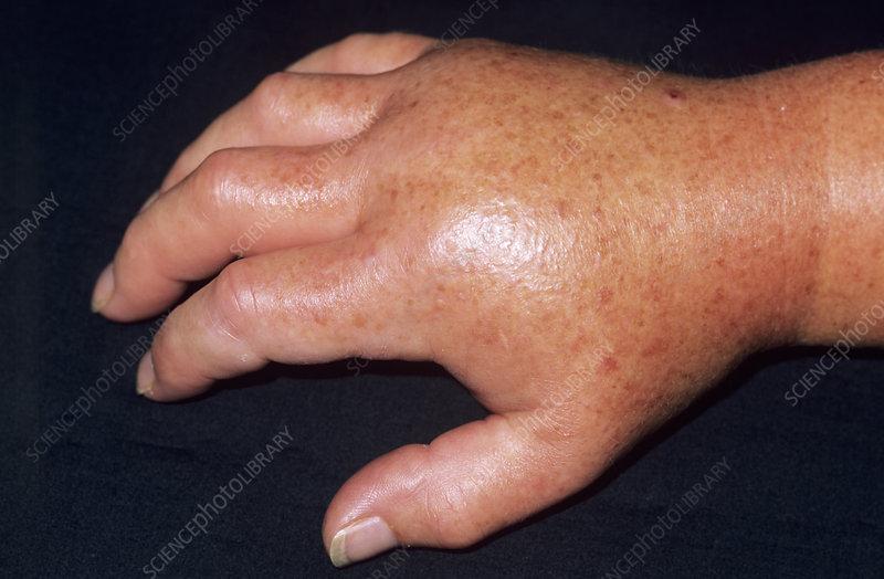 Wasp Sting On Finger