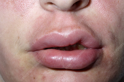 What allergy can cause swollen lips
