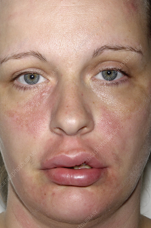 Has facial lip swelling consider, that