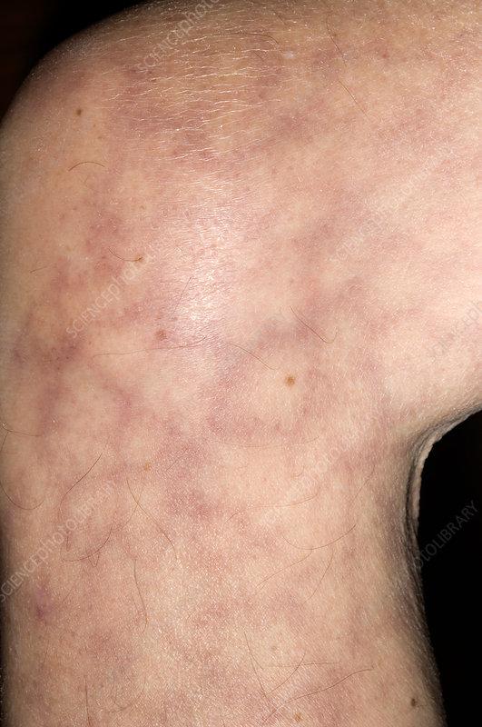 Livedo reticularis vascular disorder - Stock Image - M320