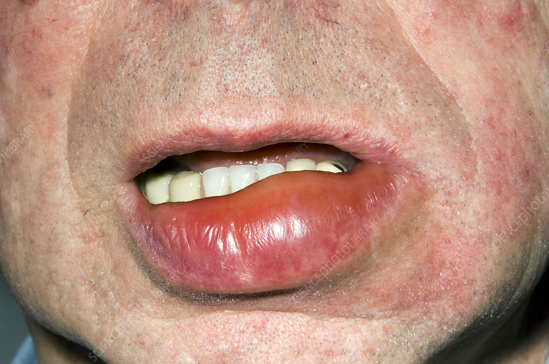 Swollen Lip Stock Image M320 0446 Science Photo Library