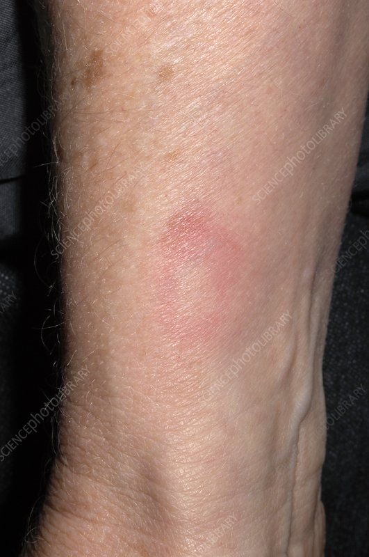 Drug-induced rash on wrist