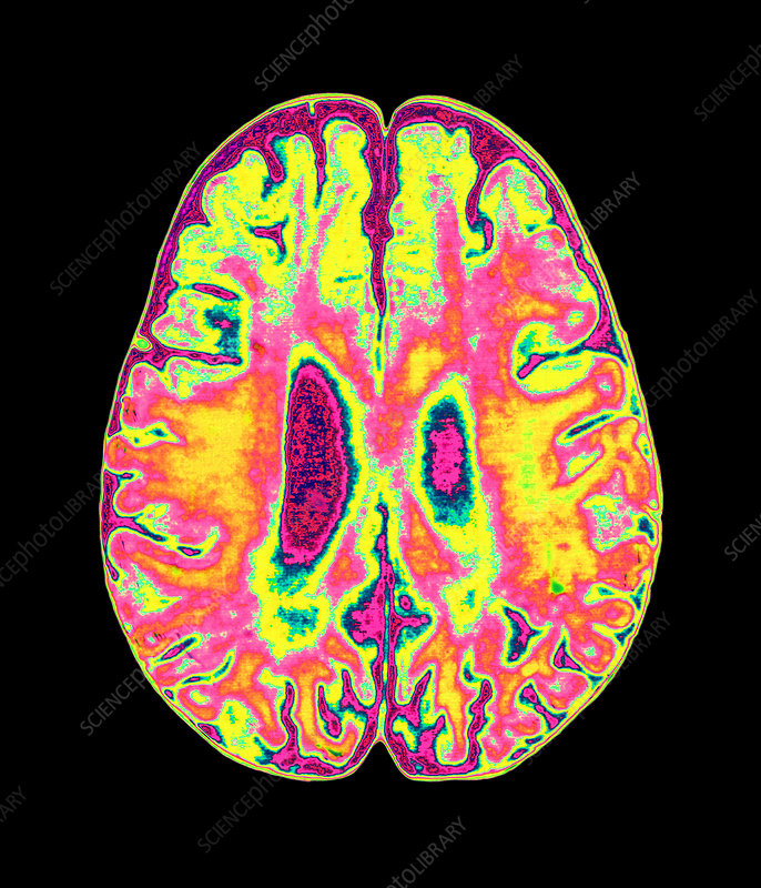Coloured MRI scan of organophosphate brain damage