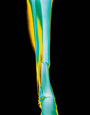 Coloured x-ray of fractured tibia