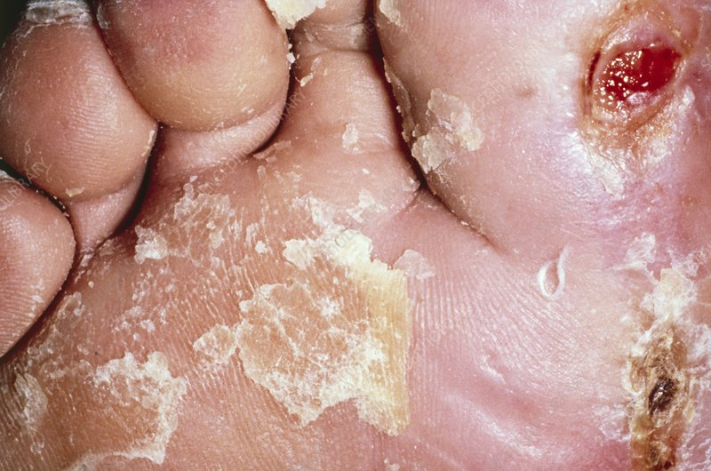 Caption: Photograph of frostbitten toes, post treatment. Frostbite refers to
