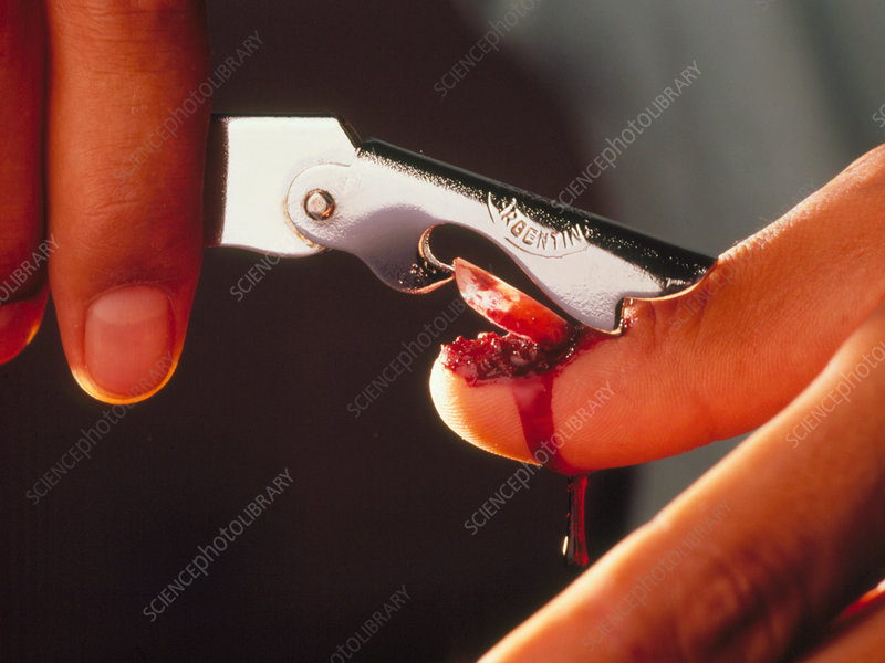 Torture: using a tin-opener on a human fingernail