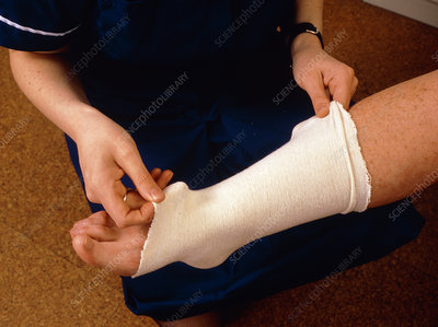 Applying bandage to sprained ankle