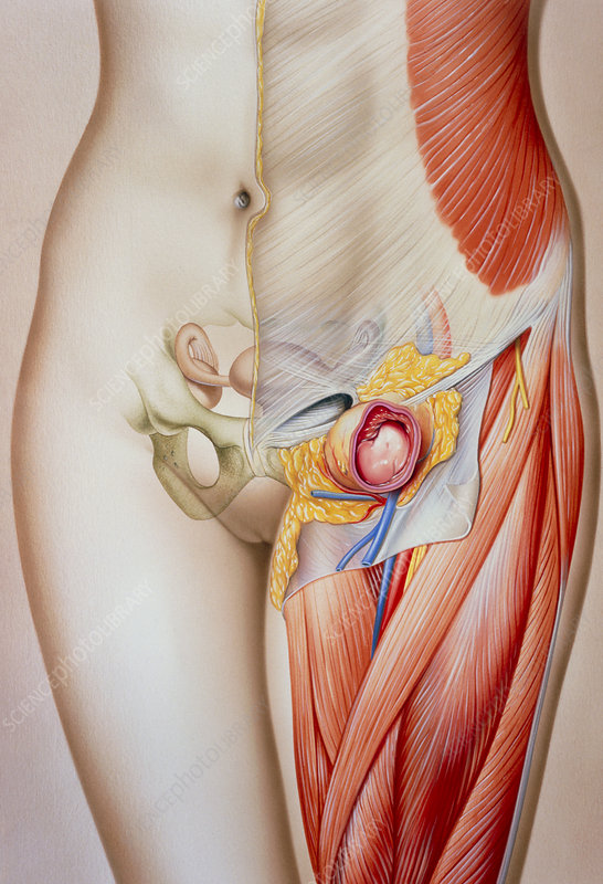 Illustration of a femoral hernia