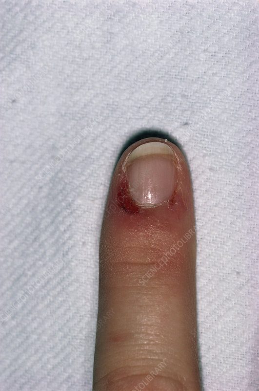 Damage to cuticle of finger biter