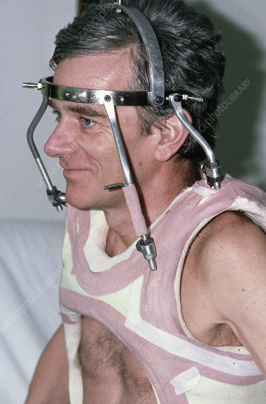 Man wearing a neck brace after a spinal fracture